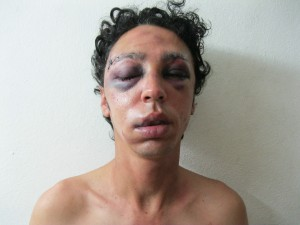 Mario José Delgado González after he was beaten