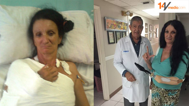 Regime opponent Sirley Avila was attacked with machetes in her home province. (14ymedio)